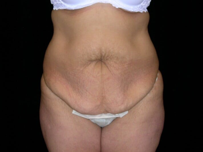 Tummy Tuck Gallery - Patient 39244096 - Image 1