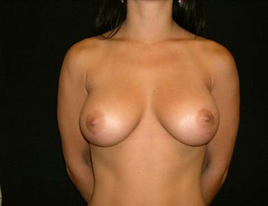 Breast Augmentation Gallery - Patient 39244089 - Image 2
