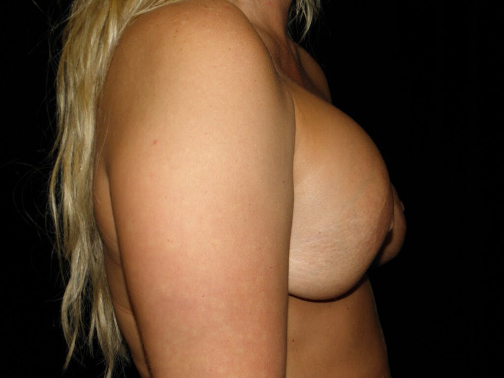 Revision Breast Surgery Gallery - Patient 39244093 - Image 5