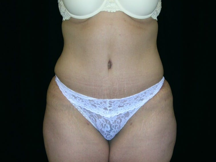 Tummy Tuck Gallery - Patient 39244096 - Image 2