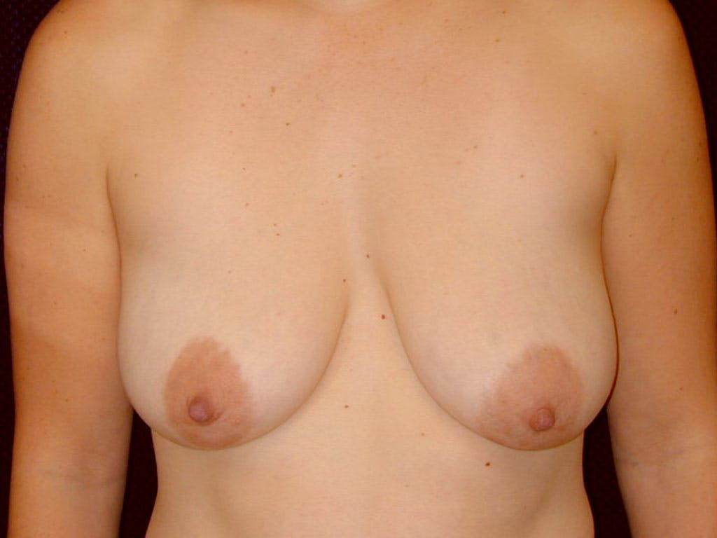 Vertical and Inverted T Breast Lift Gallery - Patient 39244098 - Image 1