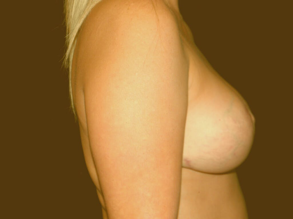 Revision Breast Surgery Gallery - Patient 39244093 - Image 6