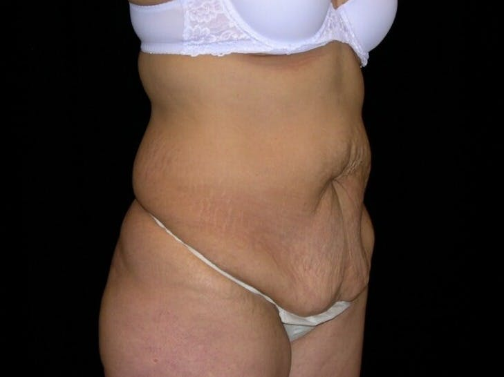 Tummy Tuck Gallery - Patient 39244096 - Image 3