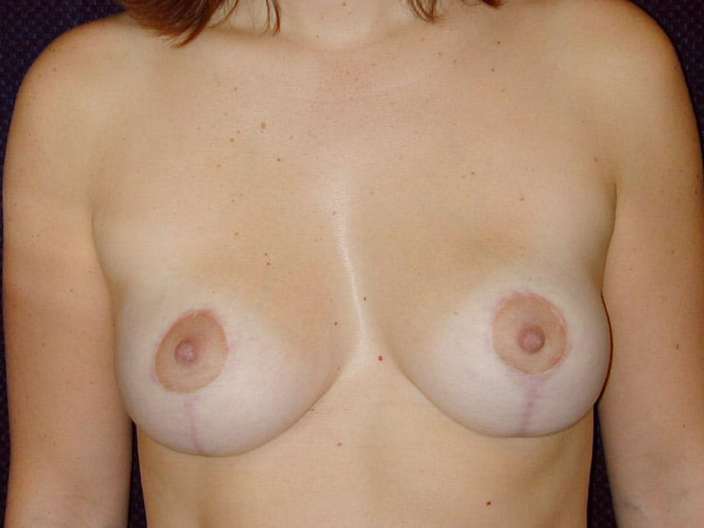 Vertical and Inverted T Breast Lift Gallery - Patient 39244098 - Image 2