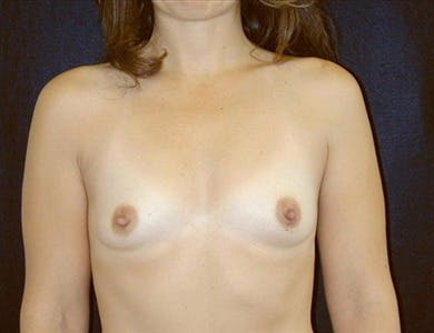 Breast Augmentation Gallery - Patient 39244091 - Image 1
