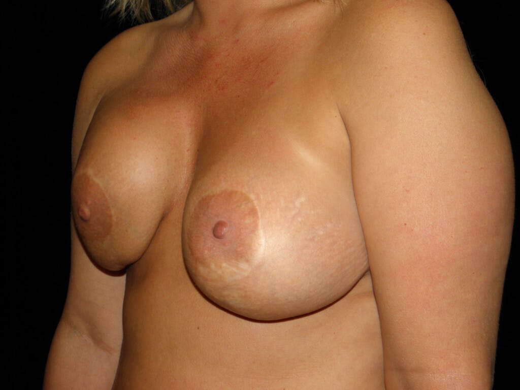 Revision Breast Surgery Gallery - Patient 39244093 - Image 7