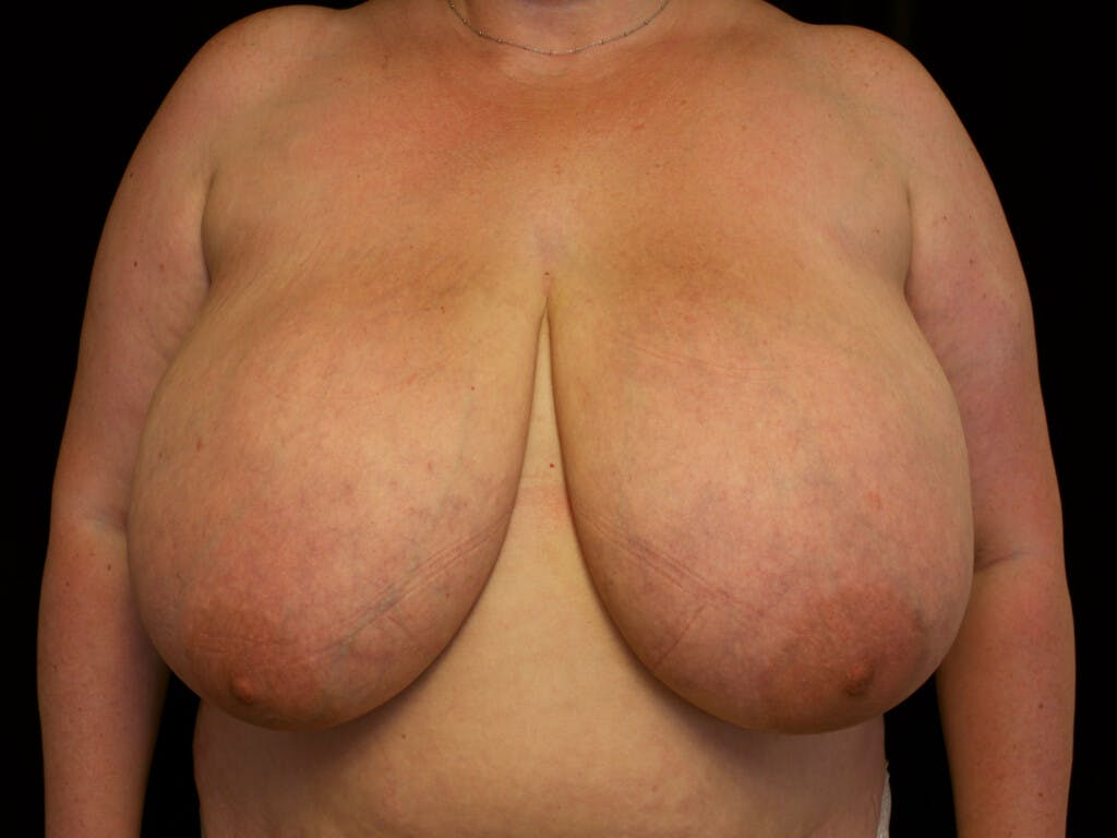Breast Reduction T Incision Gallery - Patient 39244100 - Image 1