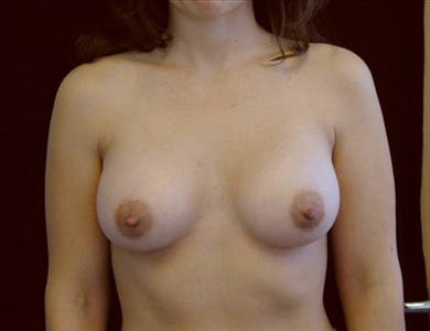 Breast Augmentation Gallery - Patient 39244091 - Image 2