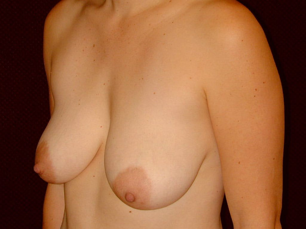 Vertical and Inverted T Breast Lift Gallery - Patient 39244098 - Image 3