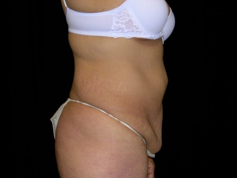 Tummy Tuck Gallery - Patient 39244096 - Image 5