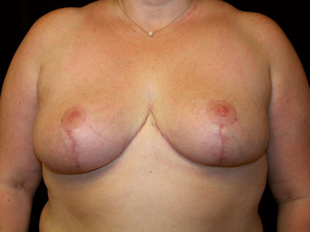 Breast Reduction T Incision Gallery - Patient 39244100 - Image 2