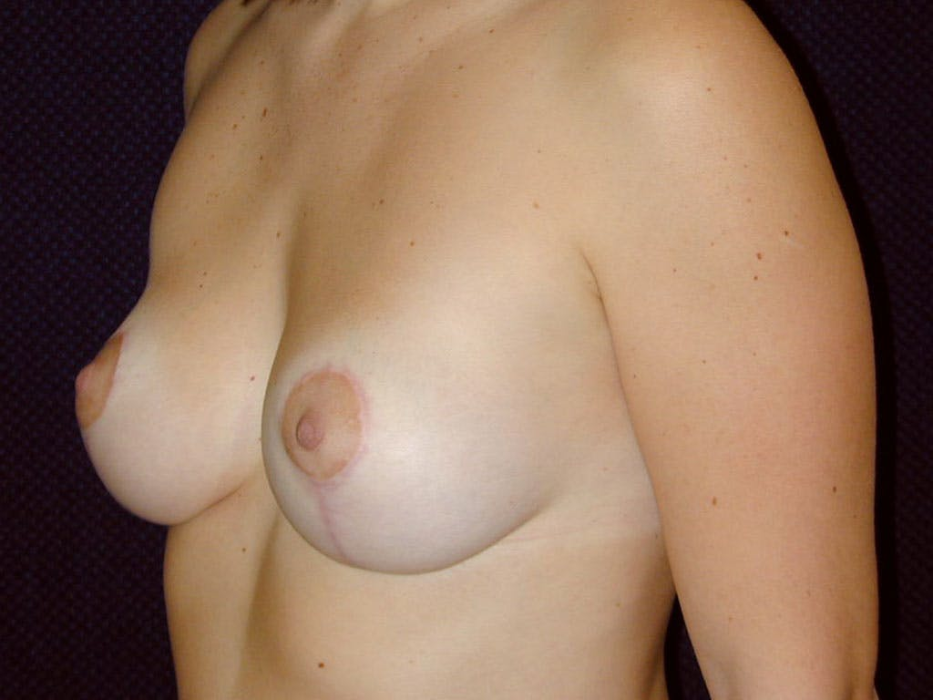 Vertical and Inverted T Breast Lift Gallery - Patient 39244098 - Image 4