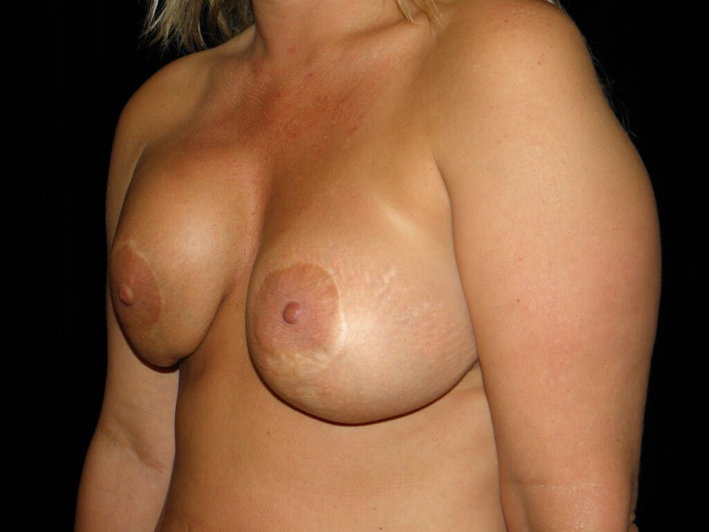 Revision Breast Surgery Gallery - Patient 39244093 - Image 9