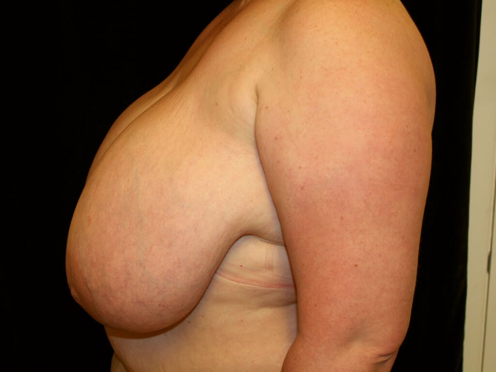 Breast Reduction T Incision Gallery - Patient 39244100 - Image 3
