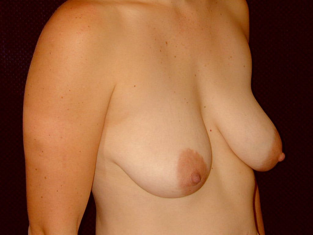 Vertical and Inverted T Breast Lift Gallery - Patient 39244098 - Image 5