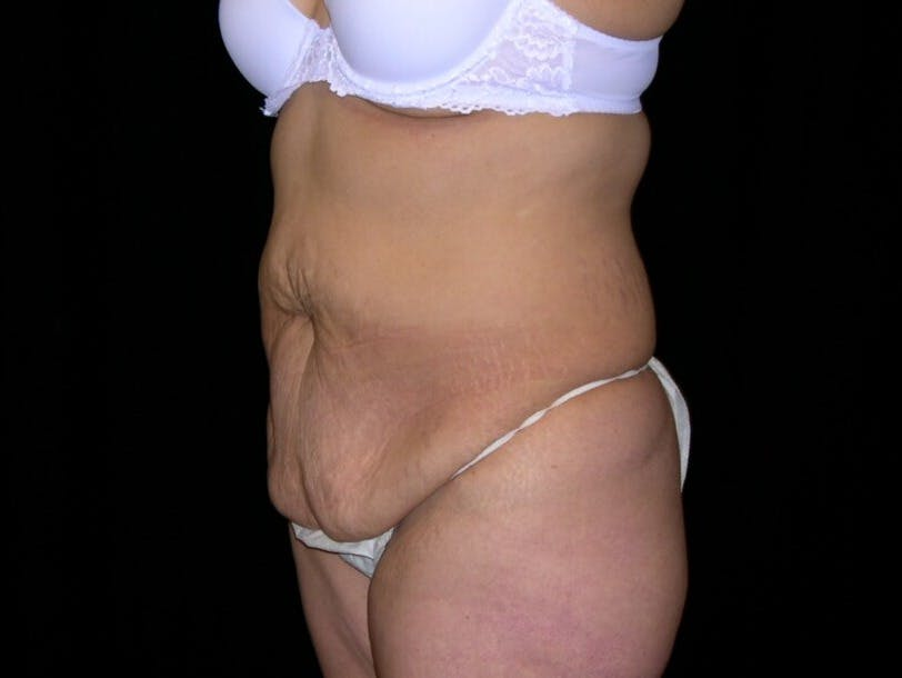Tummy Tuck Gallery - Patient 39244096 - Image 7