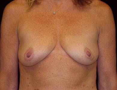 Breast Augmentation Gallery - Patient 39244094 - Image 1