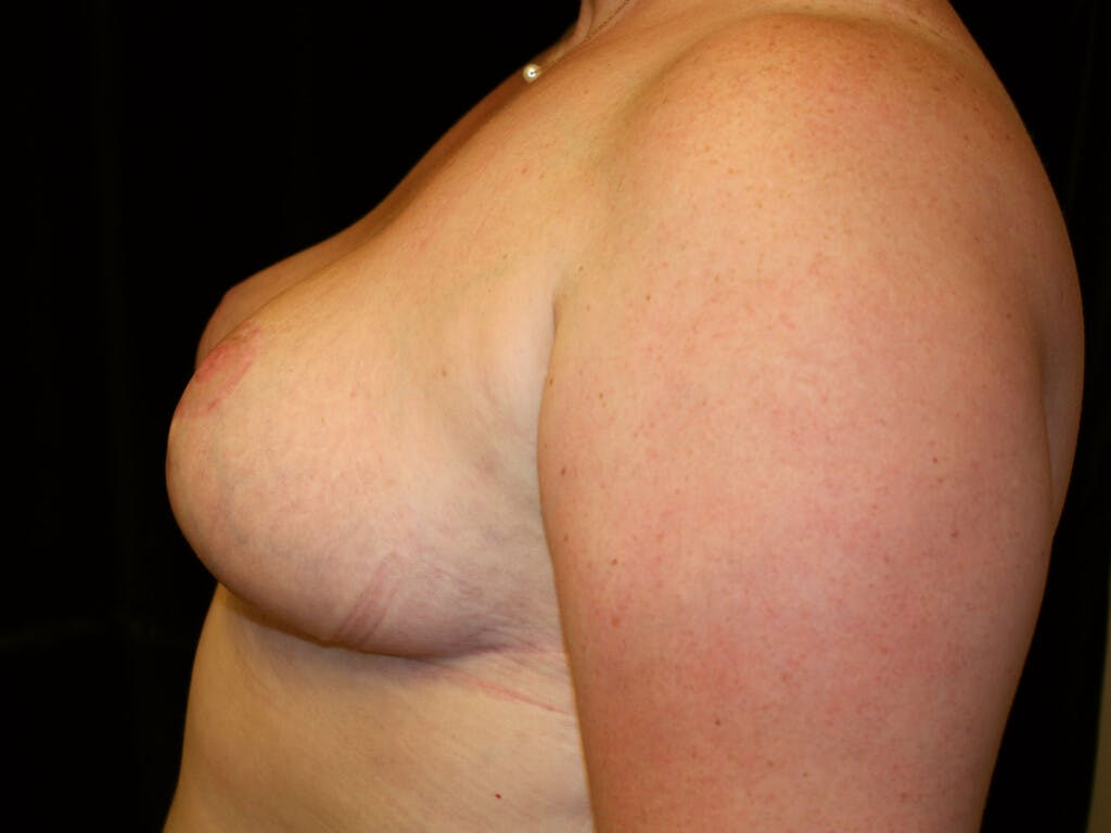 Breast Reduction T Incision Gallery - Patient 39244100 - Image 4
