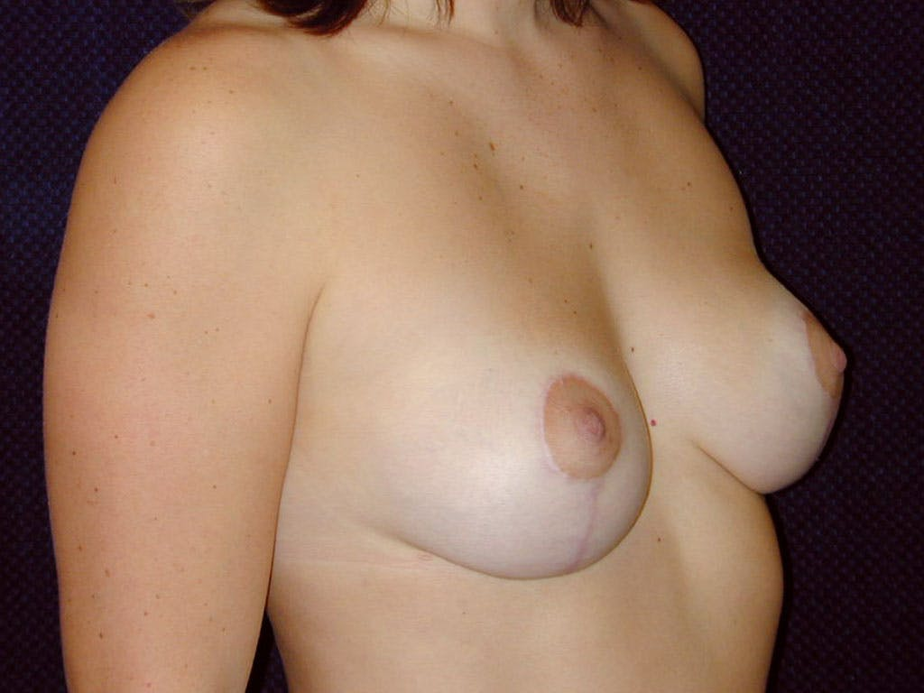 Vertical and Inverted T Breast Lift Gallery - Patient 39244098 - Image 6