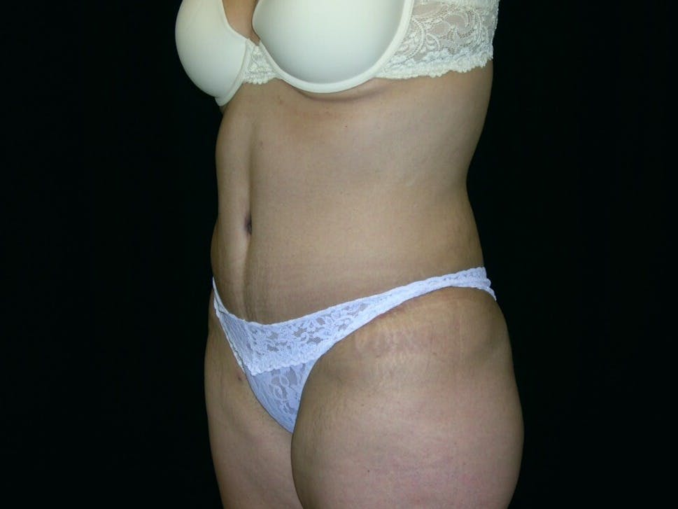 Tummy Tuck Gallery - Patient 39244096 - Image 8