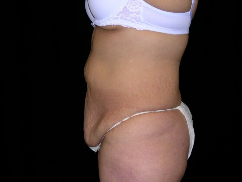 Tummy Tuck Gallery - Patient 39244096 - Image 9
