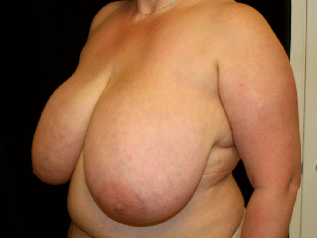 Breast Reduction T Incision Gallery - Patient 39244100 - Image 5