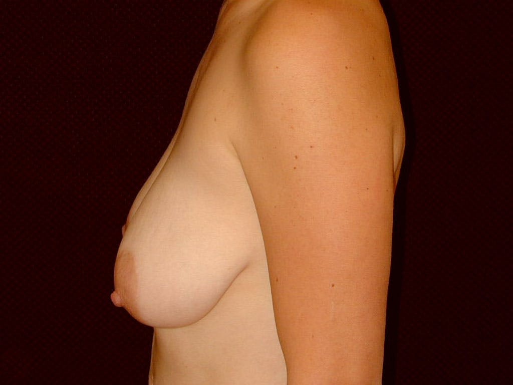 Vertical and Inverted T Breast Lift Gallery - Patient 39244098 - Image 7