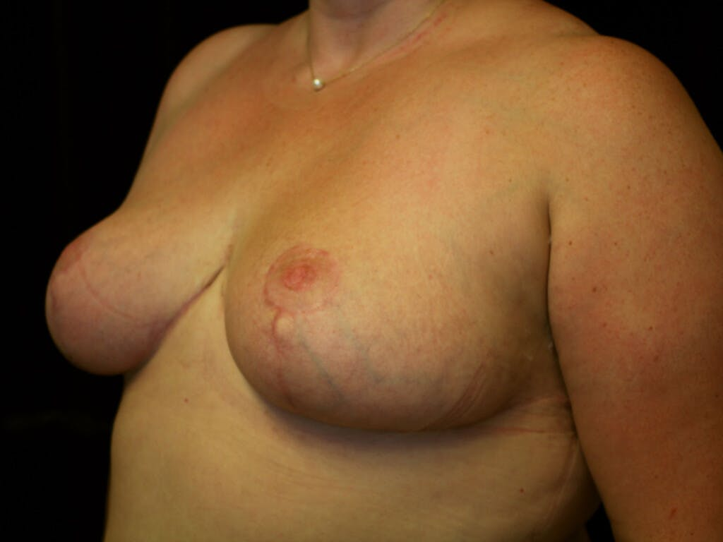 Breast Reduction T Incision Gallery - Patient 39244100 - Image 6