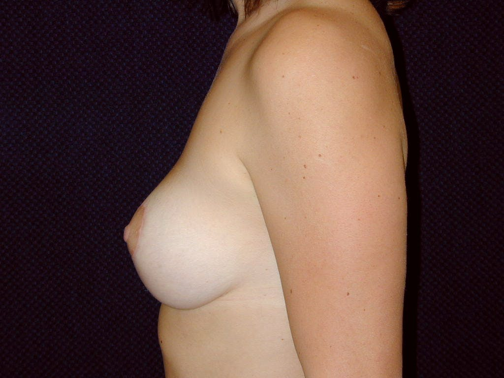 Vertical and Inverted T Breast Lift Gallery - Patient 39244098 - Image 8
