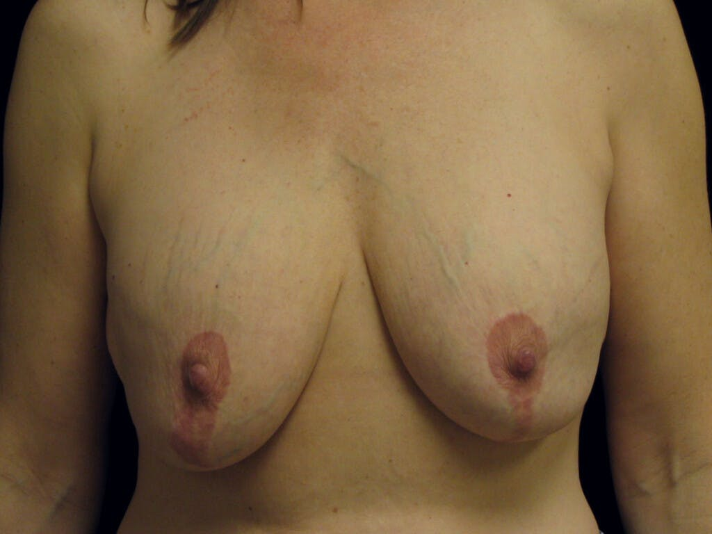Revision Breast Surgery Gallery - Patient 39244107 - Image 1