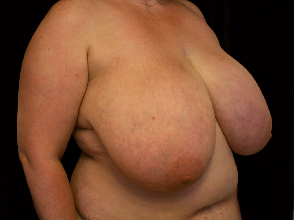 Breast Reduction T Incision Gallery - Patient 39244100 - Image 7