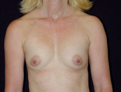 Breast Augmentation Gallery - Patient 39244097 - Image 1