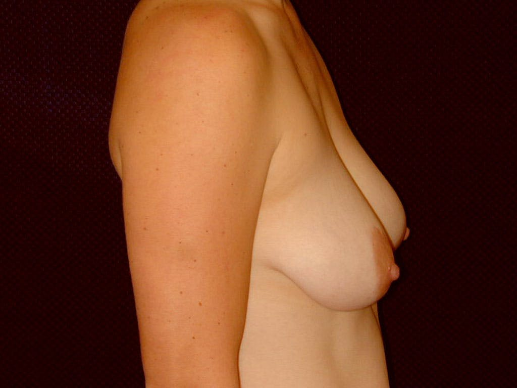 Vertical and Inverted T Breast Lift Gallery - Patient 39244098 - Image 9