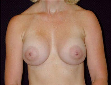 Breast Augmentation Gallery - Patient 39244097 - Image 2