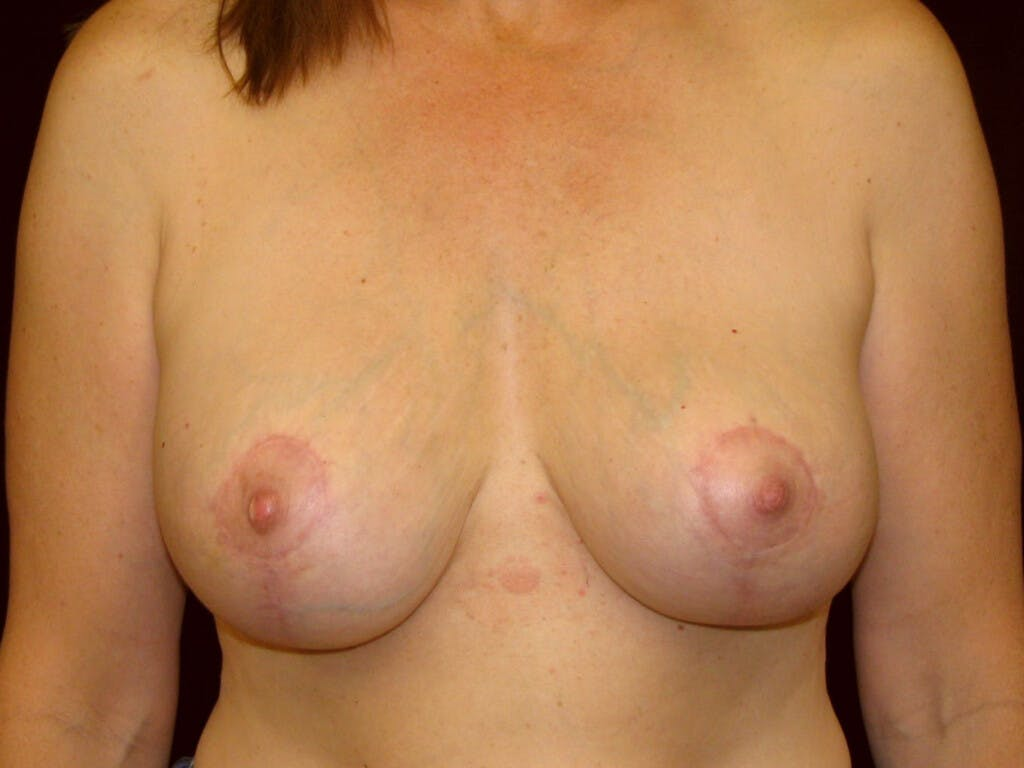 Revision Breast Surgery Gallery - Patient 39244107 - Image 2
