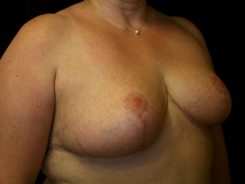 Breast Reduction T Incision Gallery - Patient 39244100 - Image 8