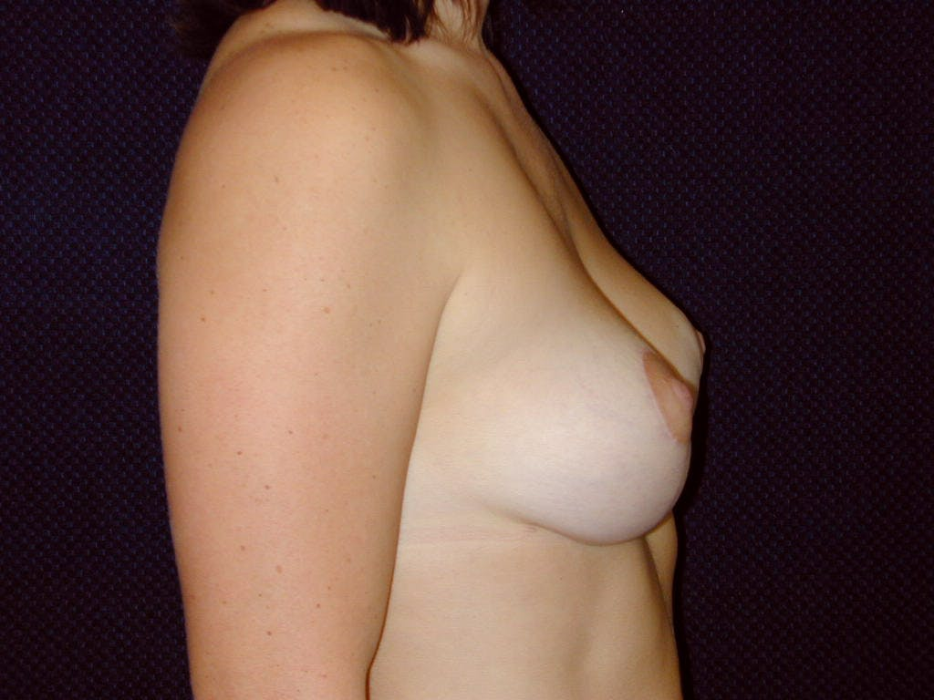 Vertical and Inverted T Breast Lift Gallery - Patient 39244098 - Image 10