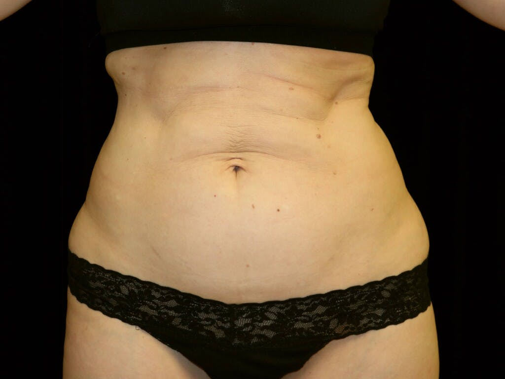 Tummy Tuck Gallery - Patient 39244106 - Image 1