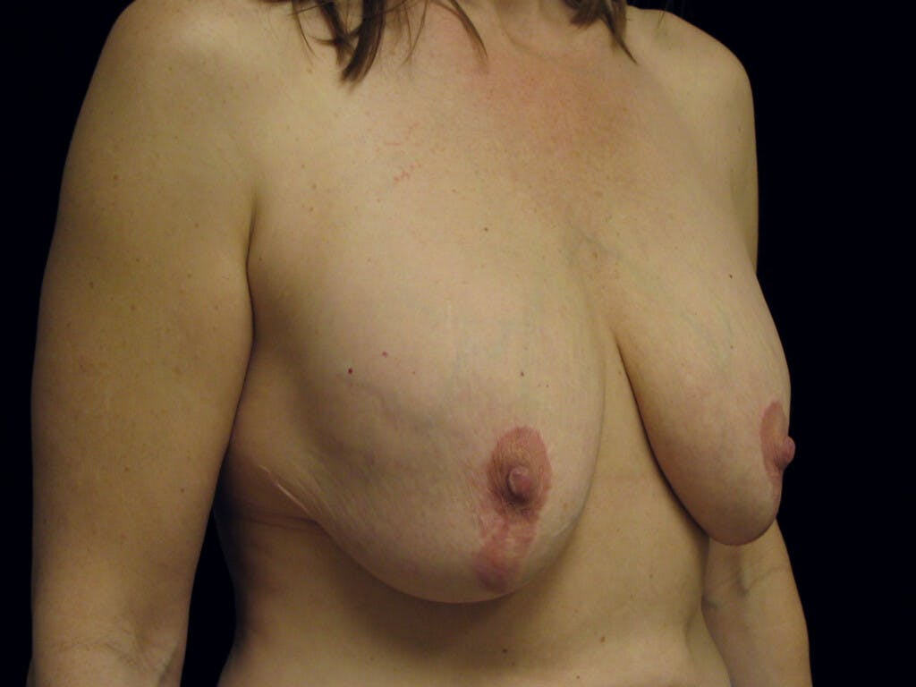 Revision Breast Surgery Gallery - Patient 39244107 - Image 3