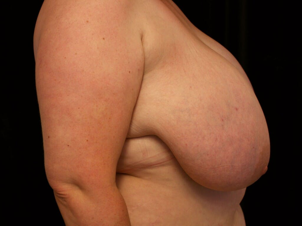Breast Reduction T Incision Gallery - Patient 39244100 - Image 9