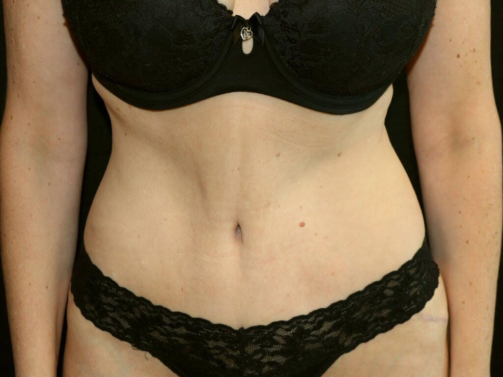 Tummy Tuck Gallery - Patient 39244106 - Image 2