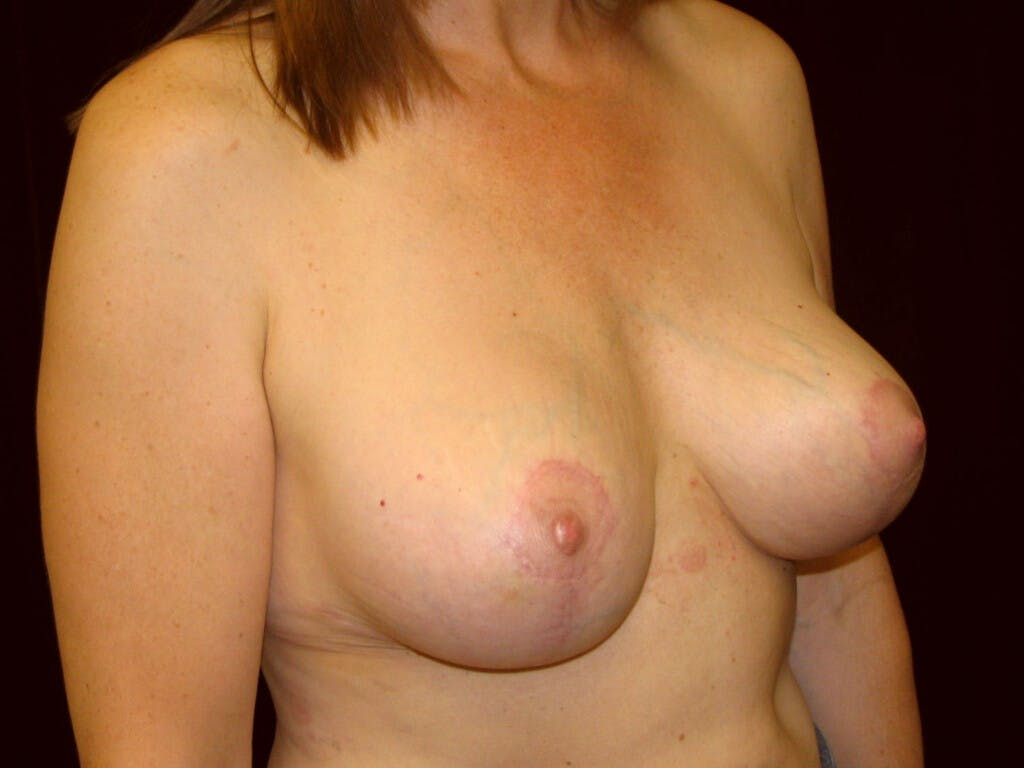 Revision Breast Surgery Gallery - Patient 39244107 - Image 4
