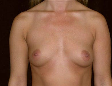 Breast Augmentation Gallery - Patient 39244102 - Image 1