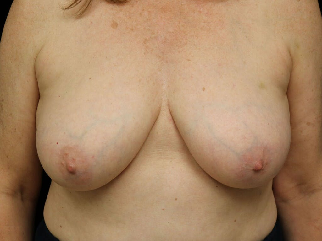 Vertical and Inverted T Breast Lift Gallery - Patient 39244110 - Image 1