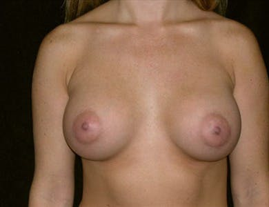 Breast Augmentation Gallery - Patient 39244102 - Image 2