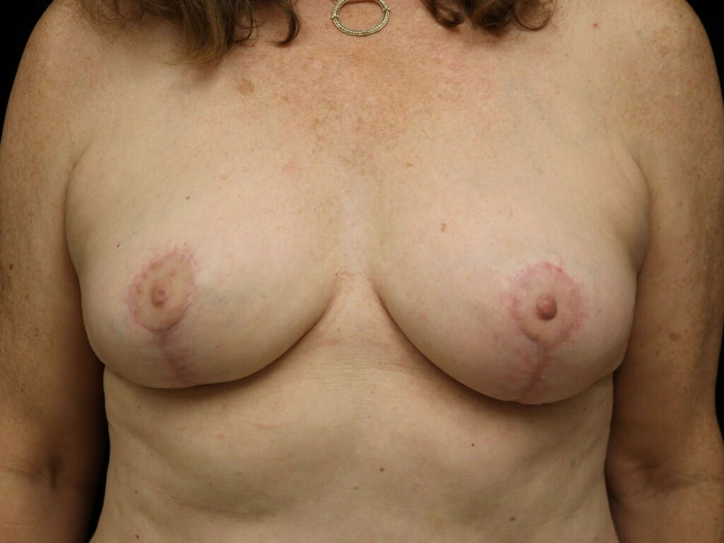 Vertical and Inverted T Breast Lift Gallery - Patient 39244110 - Image 2