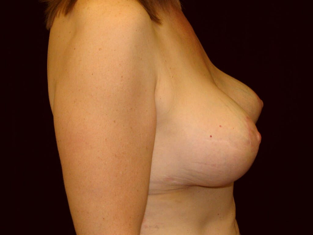 Revision Breast Surgery Gallery - Patient 39244107 - Image 6