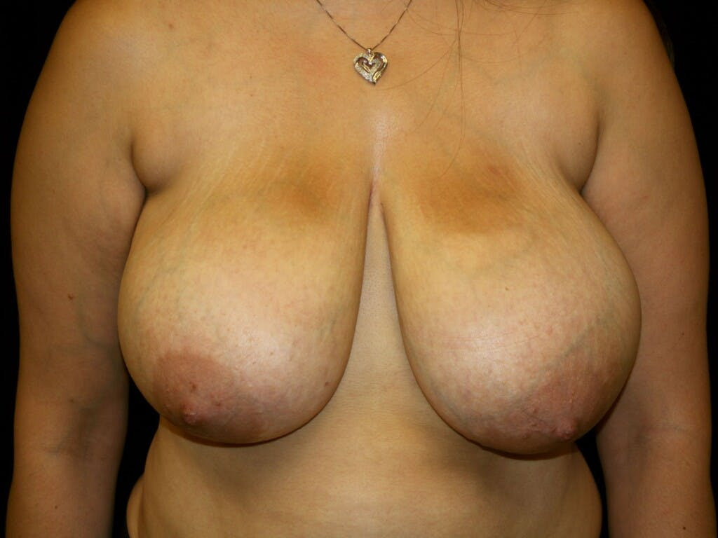 Breast Reduction T Incision Gallery - Patient 39244112 - Image 1