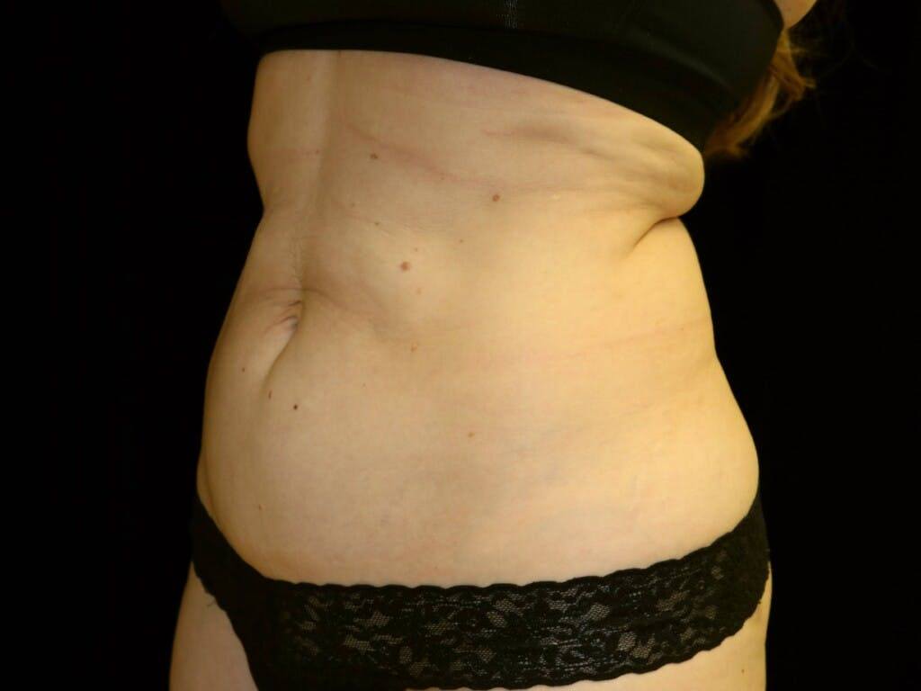 Tummy Tuck Gallery - Patient 39244106 - Image 5