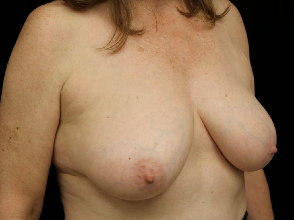 Vertical and Inverted T Breast Lift Gallery - Patient 39244110 - Image 3